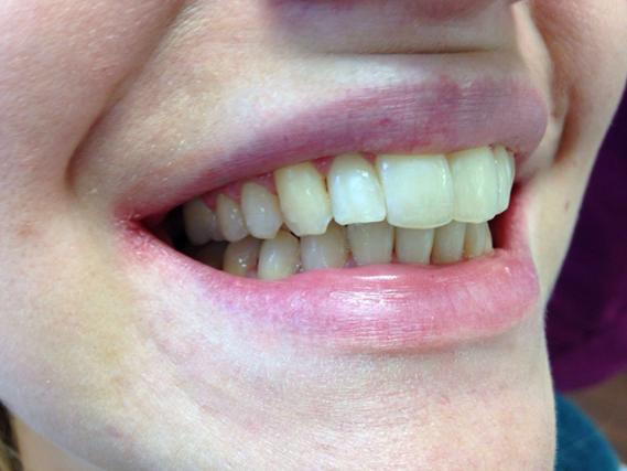 Smile Makeover - The Smiles Studio  NHS Dentist, Chandler's Ford